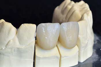 Dental Crowns in Asheboro