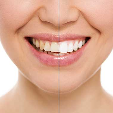 Teeth Whitening in Asheboro