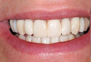 Randolph County Before and After Dental Implants